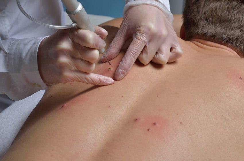 درباره HPV در مردان چه باید دانست؟