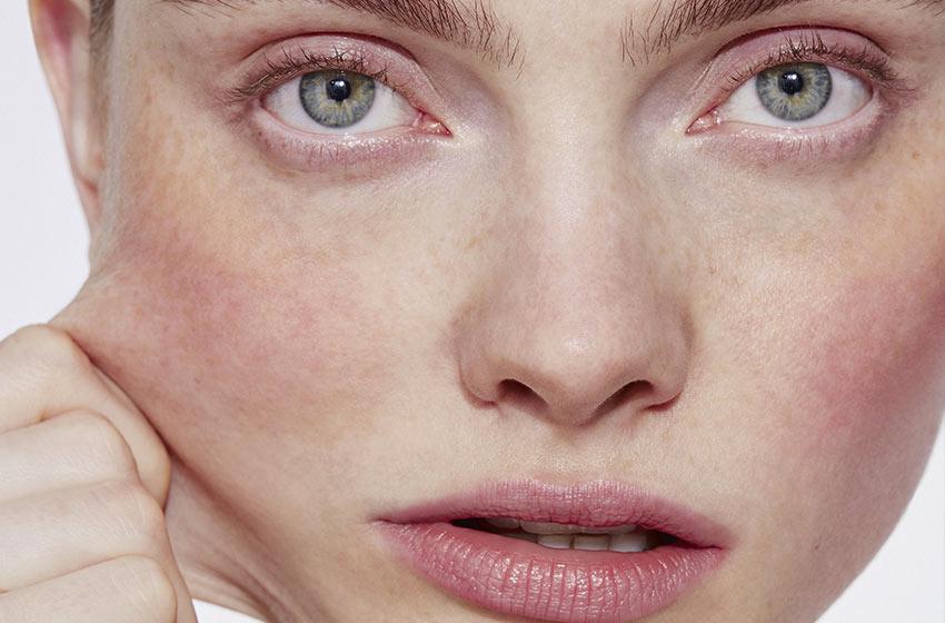 لیفت صورت؛ اکسیر جوانی پوست