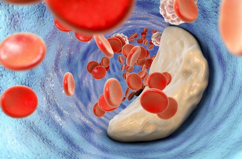 نکاتی درباره کاهش کلسترول؛ از زبان یک پزشک