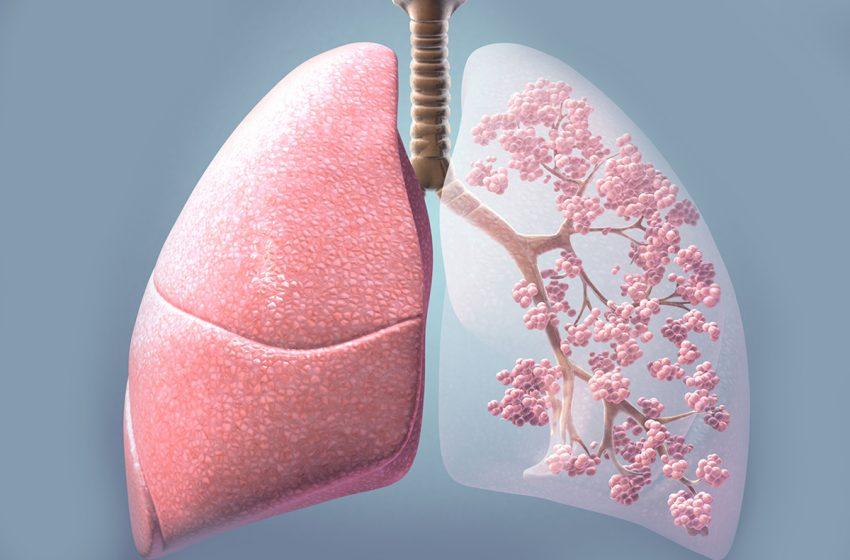 چگونه به طور طبیعی ریه هایتان را سم زدایی کنید