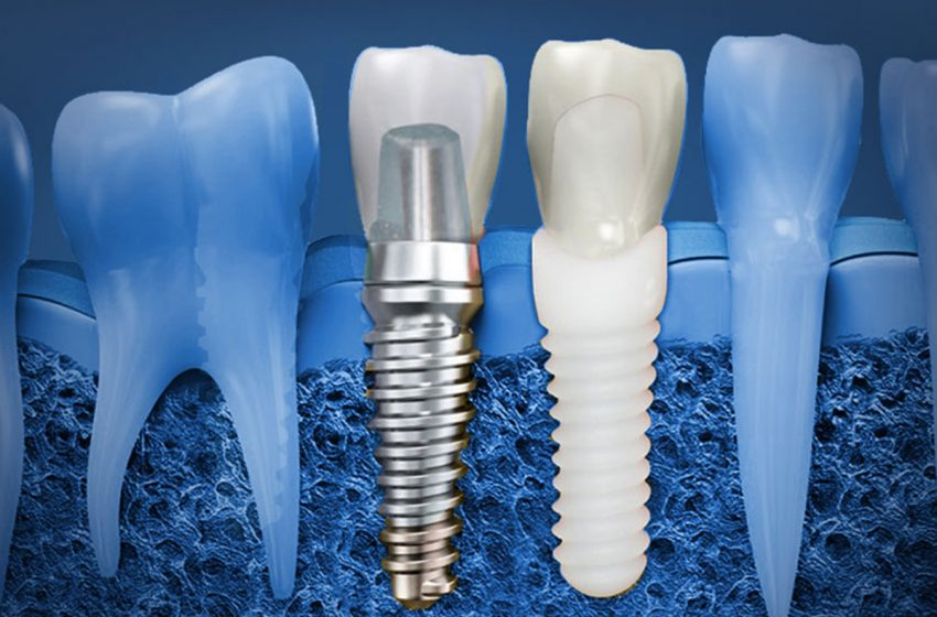 ایمپلنت یا جراحی کاشت دندان چیست؟