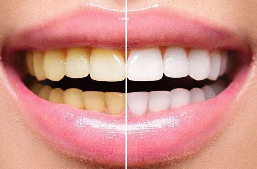 سفید کردن دندان یا بیلیچینگ؛ روشها و مضرات آن