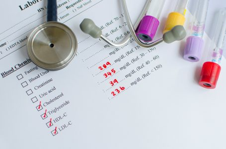 کلسترول خوب و کلسترول بد؛ آشنایی با علائم و درمان آن