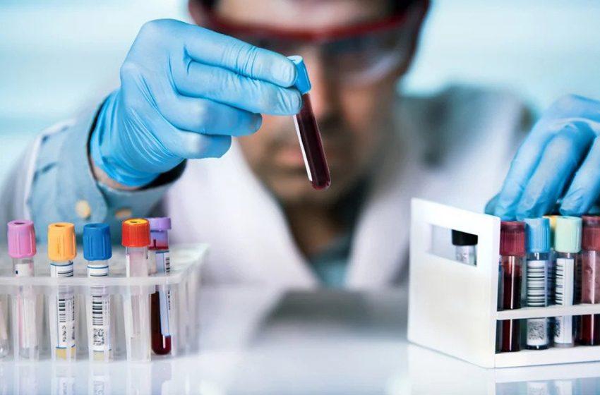 ضرورت آزمایش کلسترول خون در سلامت بدن