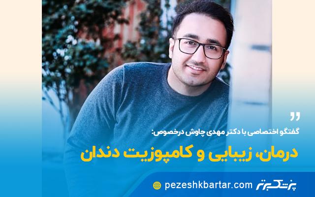 گفتگوی اختصاصی با دکتر مهدی چاوش دندانپزشک زیبایی اصفهان در خصوص کامپوزیت دندان