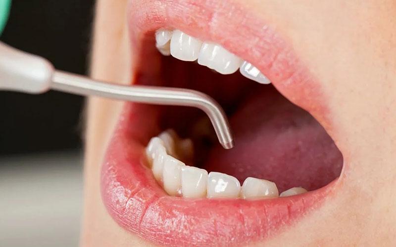 کامپوزیت-دندان